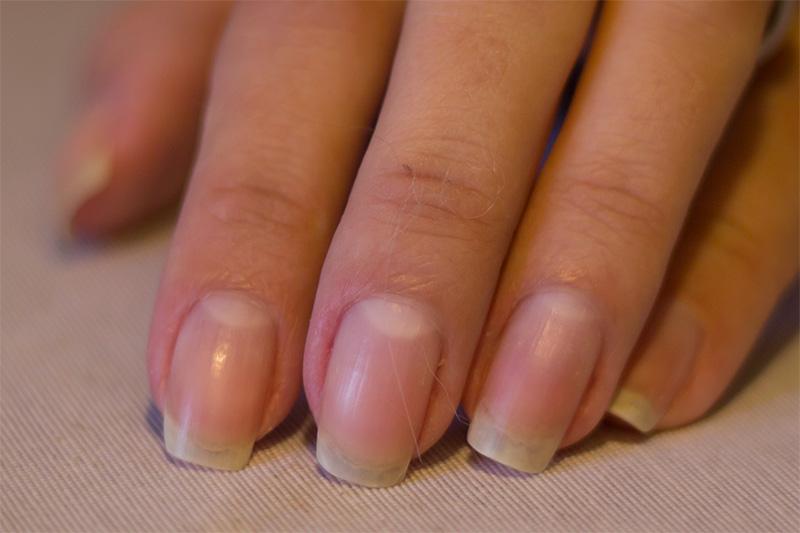 10 vanliga nagelproblem