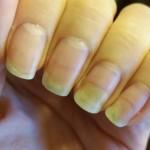Uppdatering nagellossningen