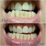Recension: Curaprox tandkräm med aktiv kol